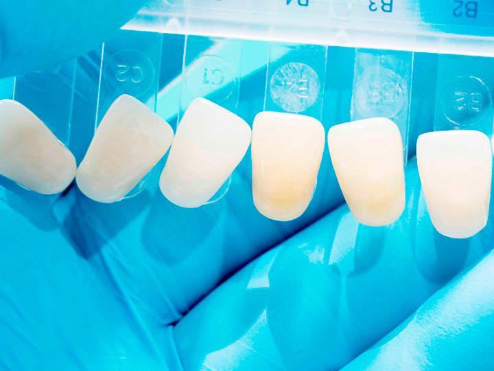 benefícios lente de contato dental